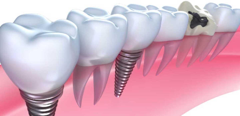 Implantologia dentale Porta Monforte Milano - ✅ eseguiamo terapie innovative ed efficaci perché il paziente è il centro del nostro lavoro!
