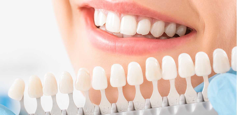 Sbiancamento denti Inveruno - ✅ eseguiamo terapie innovative ed efficaci perché il paziente è il centro del nostro lavoro!